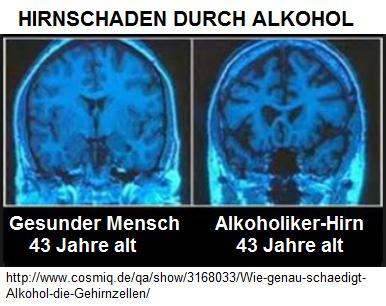 Wie Wirkt Alkohol Im Gehirn
